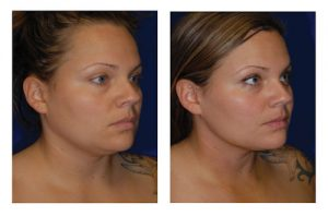 neck, liposuction San Diego, hyperbaric, Dr. William Seare