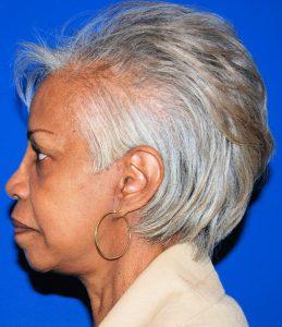 Black woman After facelift LS-C